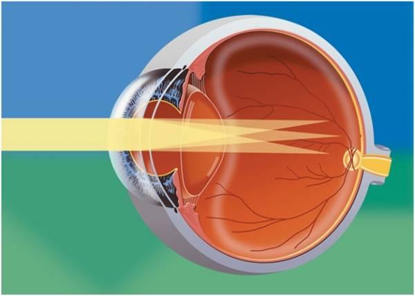 Как восстановит зрение дома
